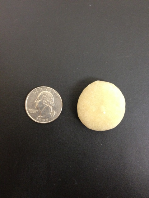 The bladder stone (post operative) with a quarter next to it to show the size.